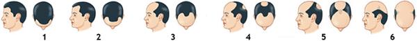 baldness_pattern (1)