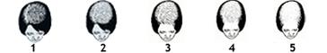 fem_bald (1)